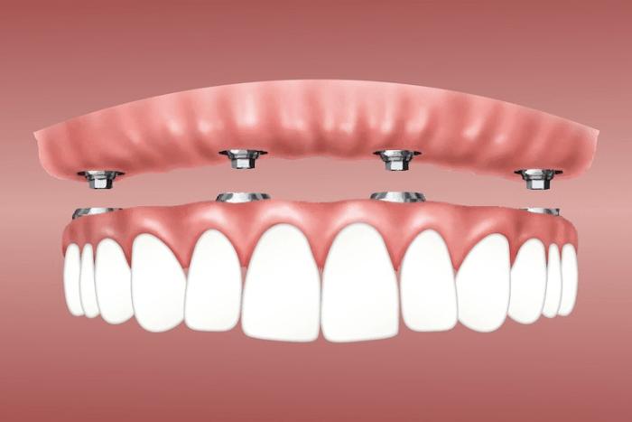 Implantes dentales, precios ¿Cuánto cuesta un implante dental? Arcada completa fijada por implantes