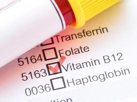 Vitamin B12 Test. Reagenzglas mit Blutprobe für einen Test auf Vitamin B12 Mangel.