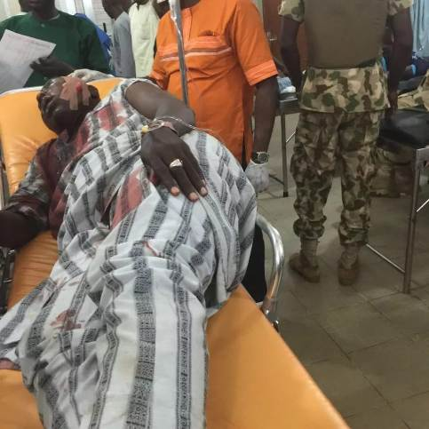 An injured UN official receiving treatment after the Boko Haram attack. Photo credits: Daily Post.