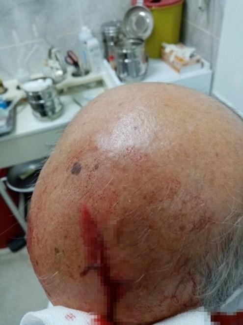 İzmirde Doktora Taşlı Saldırı: Maske Uyarısı Yapan Doktorun Kafasını Yardı