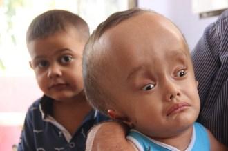 Minik Sercanın Hayatı 240 Bin Tlye Bağlı
