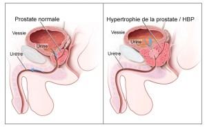Hypertrophie_bénigne_de_la_prostate