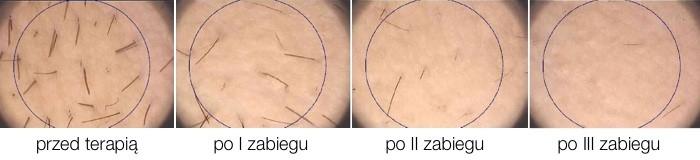 Efekt depilacji laserem