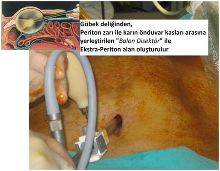 periton