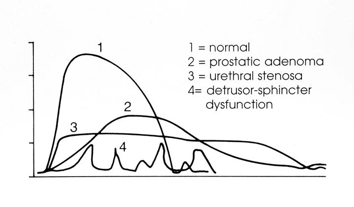 prostatik adenoma