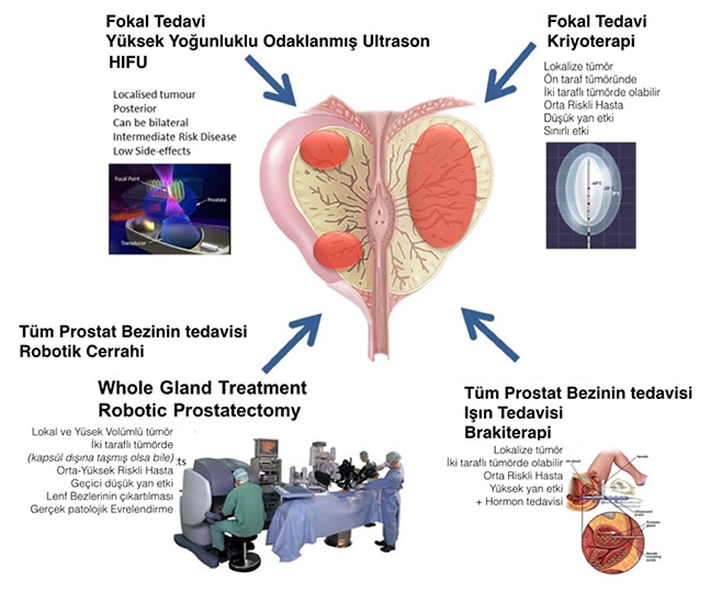 robotik cerrahi prostat