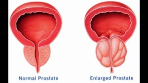 Enlarged Prostrate for the GreenLight Inner Page for Urological Specialists of Ohio