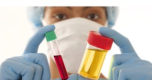 Hematuria Blood in the Urine Treatment through Urology Specialists of Ohio