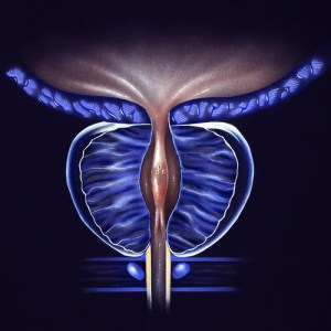 Stage 1a BPH Treatment through Urological Specialists of Ohio in Springfield Ohio