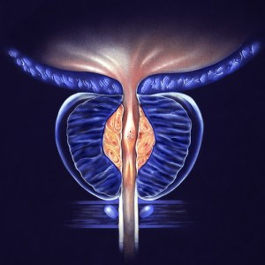 Stage 2 BPH Treatment through Urological Specialists of Ohio in Springfield Ohio
