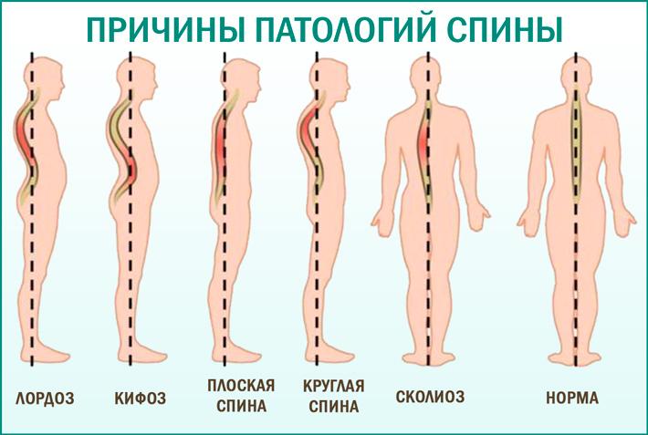 Артқа ауырсыну және төменгі арқа: себептері
