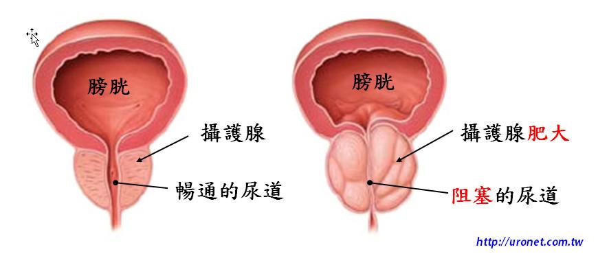什麼是攝護腺?有哪些相關疾病?   泌尿科專業資訊網 URONET