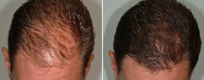 jual minyak kemiri dapat mengatasi kerontokan rambut