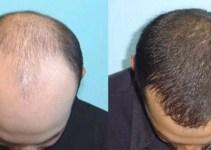 Jual Minyak Kemiri untuk Bewok dan Rambut Bayi di Malang murni 100% bermanfaat untuk menumbuhkan rambut, brewok, alis dan kumis. Lalu minyak kemiri bisa juga mengurangi rambut rontok dan ketombe.