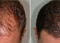 Tempat Jual Minyak Kemiri di Apotik original 100% berkhasiat untuk menumbuhkan rambut, jenggot, alis dan kumis. Setelah itu minyak kemiri bisa juga menanggulangi rambut rontok dan ketombe.