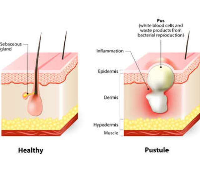 Pimple Pus Diagram Wiring Diagram Source Most Of A Pimple Puss Coming Out Diagram Of Pus