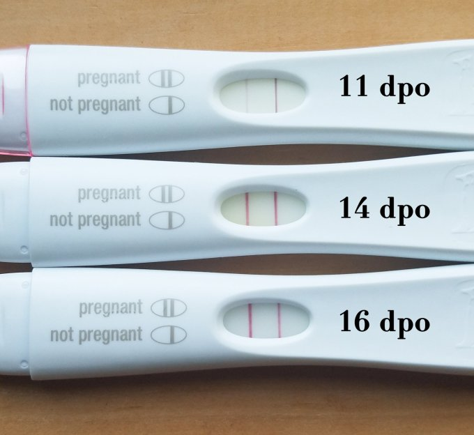 Kidney Infection Positive Pregnancy Test | Leancy Stock