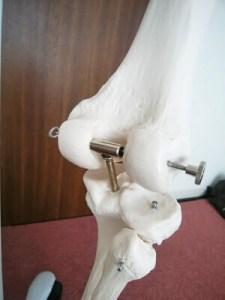 骨模型の膝関節の裏側