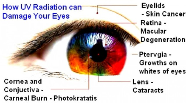 Ultravoilet effect on eyes