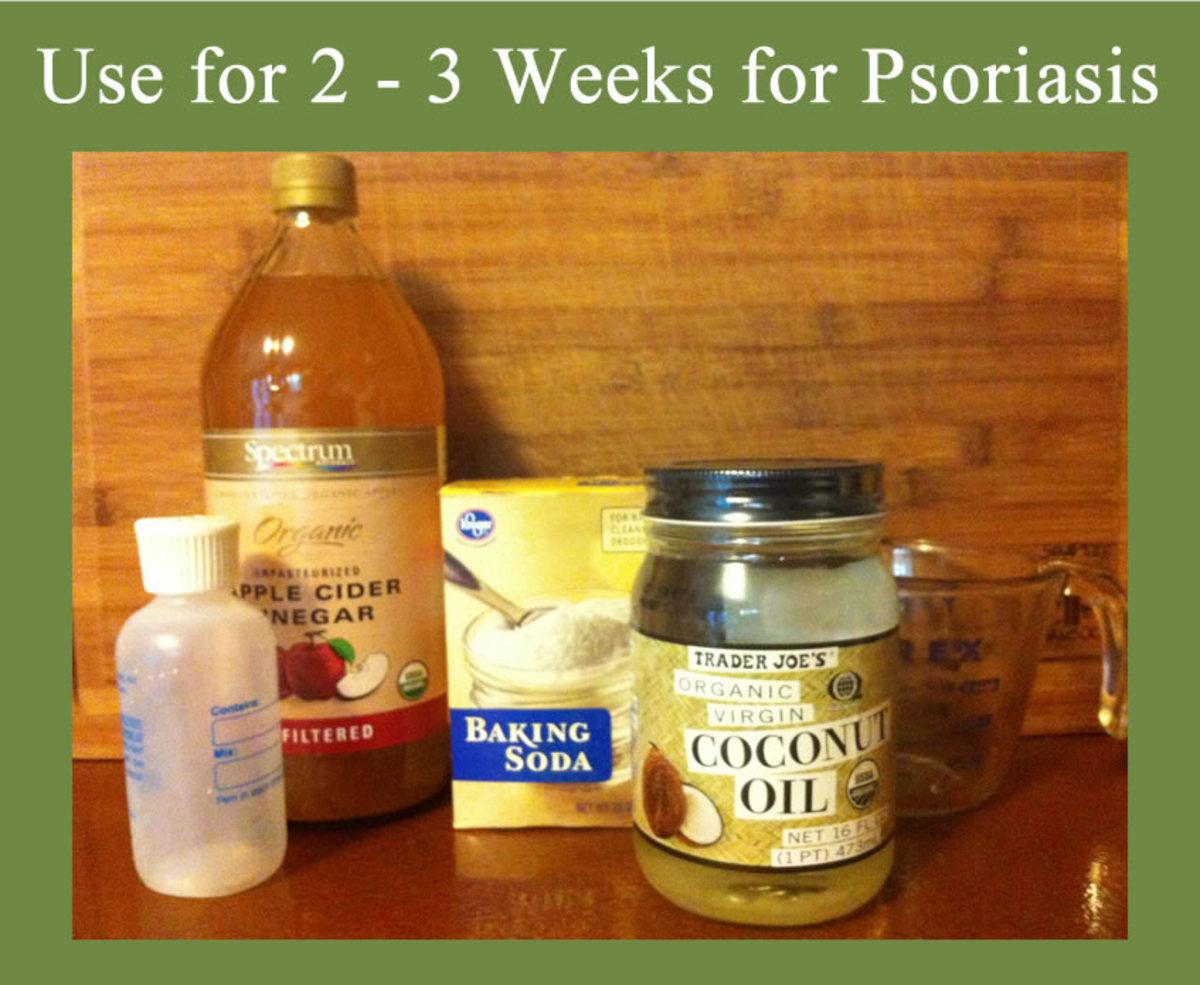 Homemade Natural Psoriasis Shampoo RemedyGrove