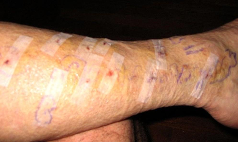 varicose vein surgery complications