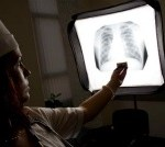 Scientists Discover Human Lung Stem Cells