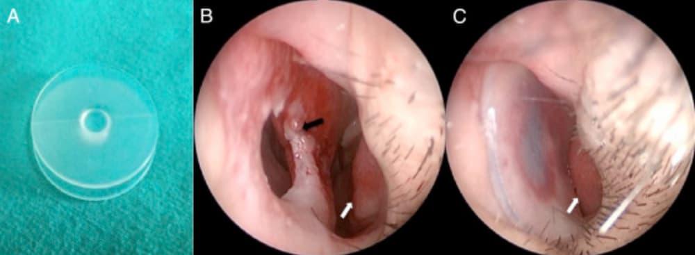 UTHSC ENT - Ask a Doctor - Septal Perforation