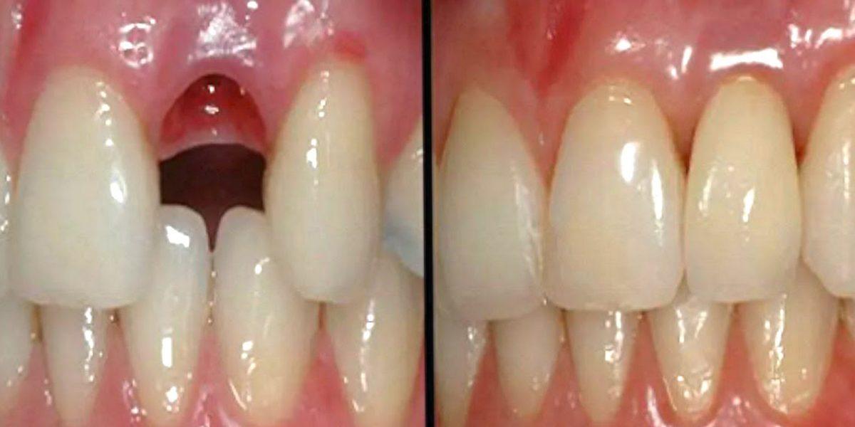 幹細胞を利用して歯が9週間で再生 コロンビア大学