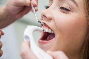 Профілактика захворювання зубів