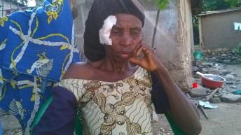 Uvira-RDC: Trois personnes blessées par jet de pierres au petit marché pirate