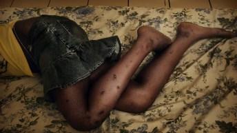 Uvira-RDC: Un homme brûle une jeune femme à la jambe et aux fesses