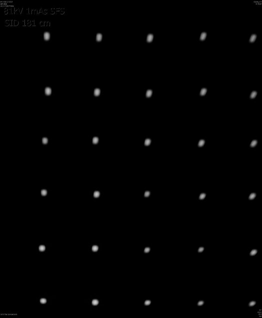 Small focal spot 81 kV 1mAs
