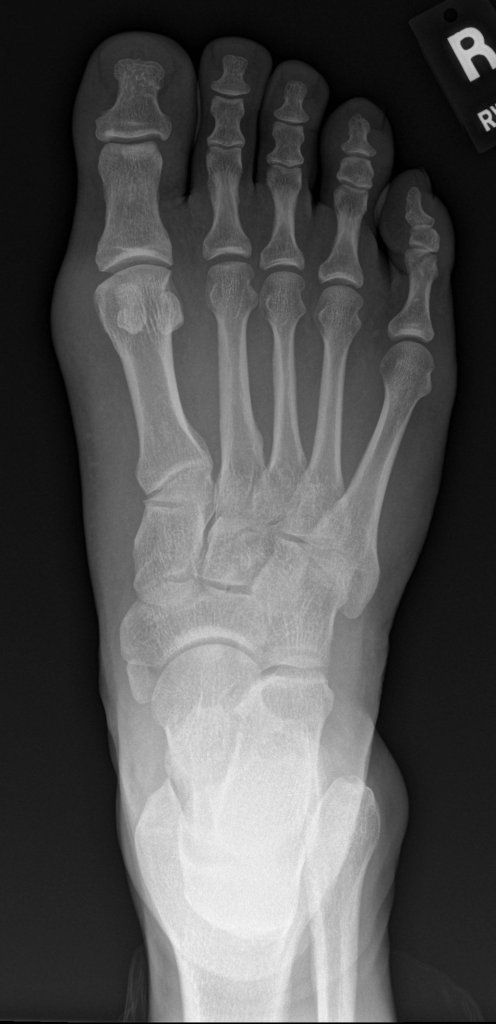 Right foot AP view