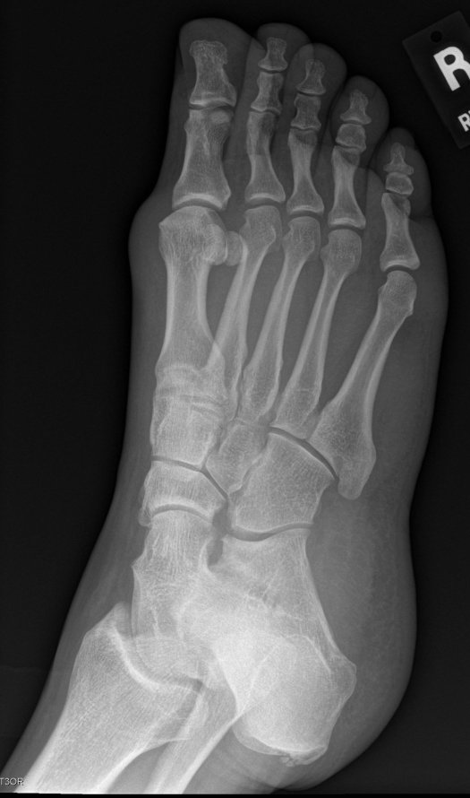 Right foot oblique view