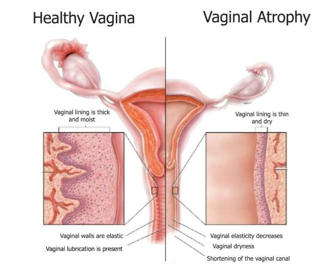 In The Vagina Are The Ones That Keeps It Tight And Gives You That Grip During Intercourse During Menopause When Estrogen Leaves The Body There Will