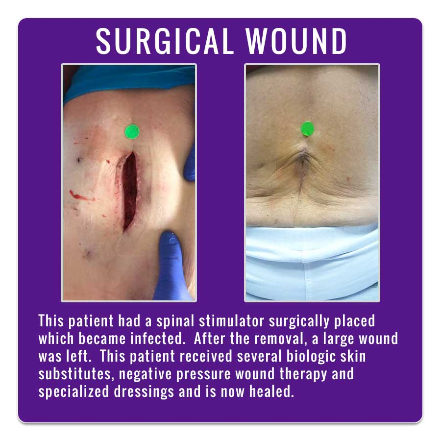 Surgical Wound