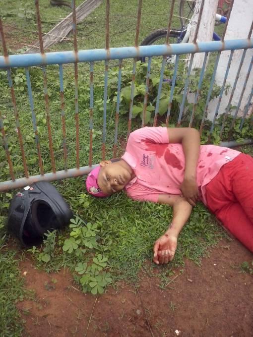 Icalo Rafael, foi baleada e se encontra internado no hospital Antenor Abreu em Pinheiro.