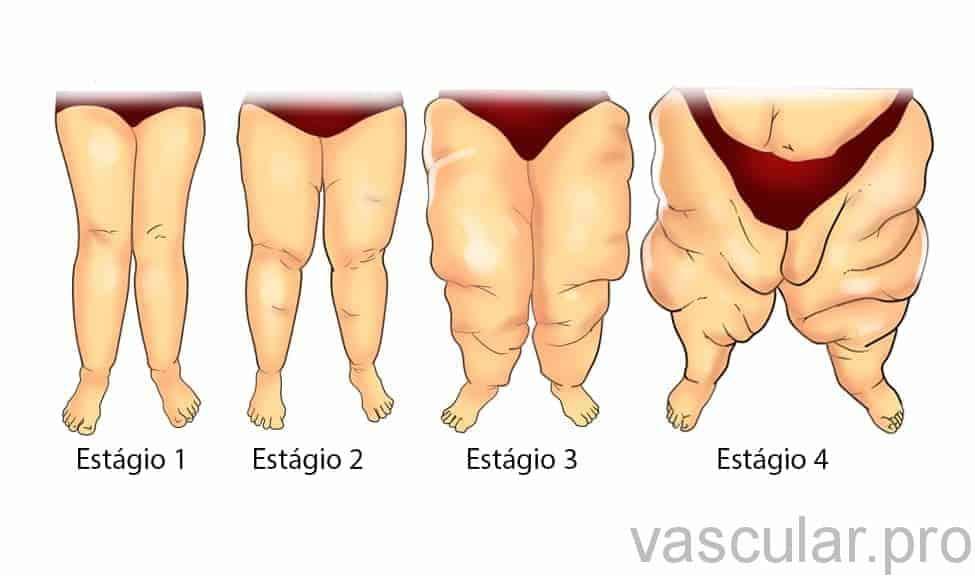 modo mobogenie de diabetes hereditaria
