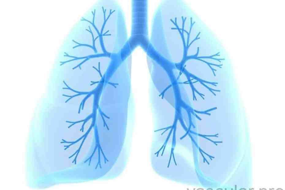 TEP, embolia pulmonar