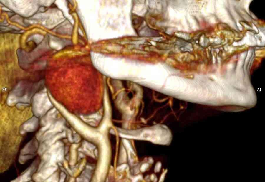 Tumor glômico carotídeo