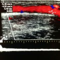 Venous insufficiency as seen by duplex ultrasound