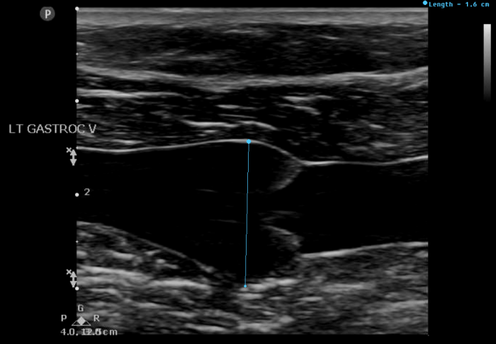 Truffles vein specialists provide advanced diagnostic ultrasound by Brian Sapp, RVT,RPhS. Gastrocnemius vein thrombus!