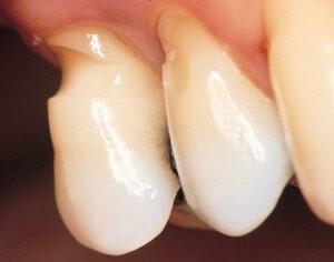 Что нужно дабы избавиться от клиновидного дефекта зубов? Клиновидный дефект зубов причины и лечение