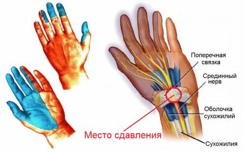 Atrite reumatoide