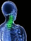 Остеосклероз: костей, суставов, тел позвонков, причины, лечение. Причины и лечение остеосклероза коленного сустава