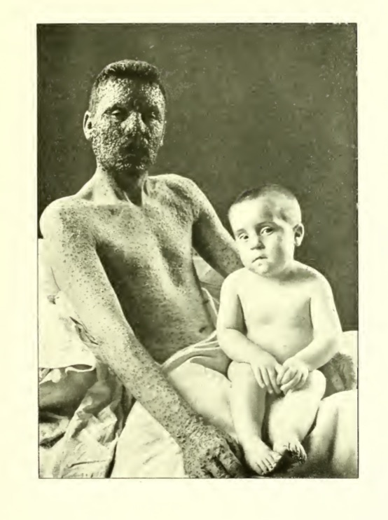 This father was the only one in the family who skipped getting vaccinated, and he got smallpox.