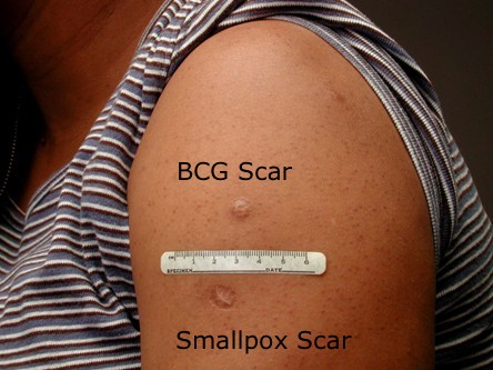 Do you have a vaccine scar on your arm?