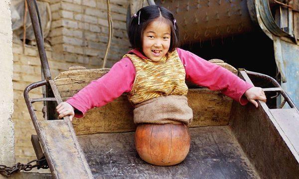 [Nhà nghèo không có tiền lắp chân giả, Tiền Hồng Diễm di chuyển bằng một quả bóng rổ thay cho đôi chân. Ảnh: sina.