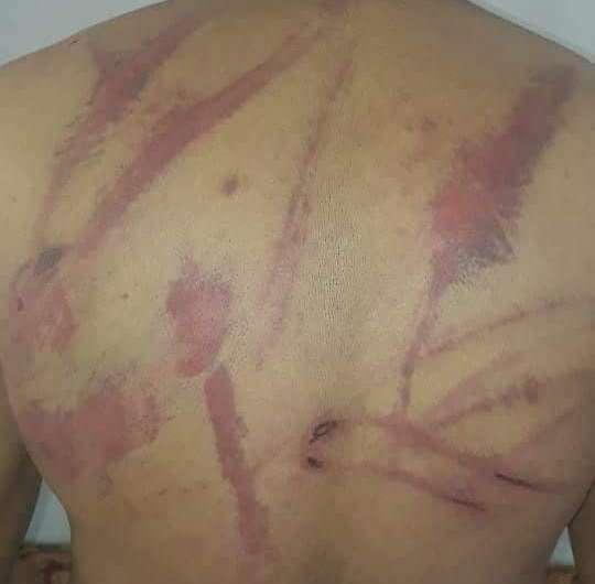 عفرين: خطف 13 مدني من قرية باسوطة