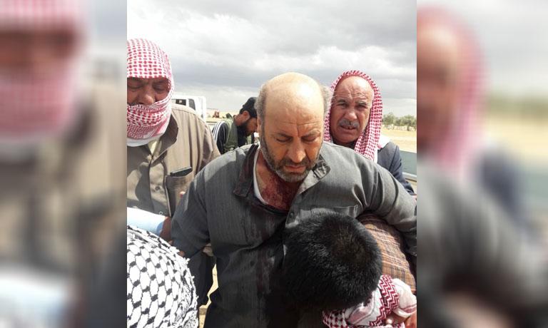 إصابة سوري برصاص الجيش التركي غرب مدينة تل أبيض الحدودية
